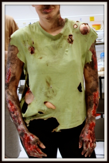 Med Student made up for Final day Moulage test