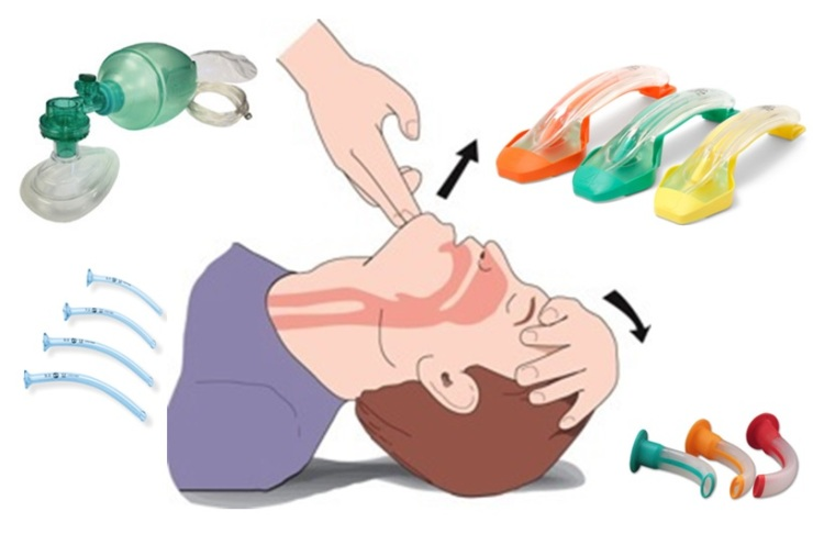 airway-picture